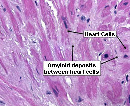 AL primary amyloidosis in the heart