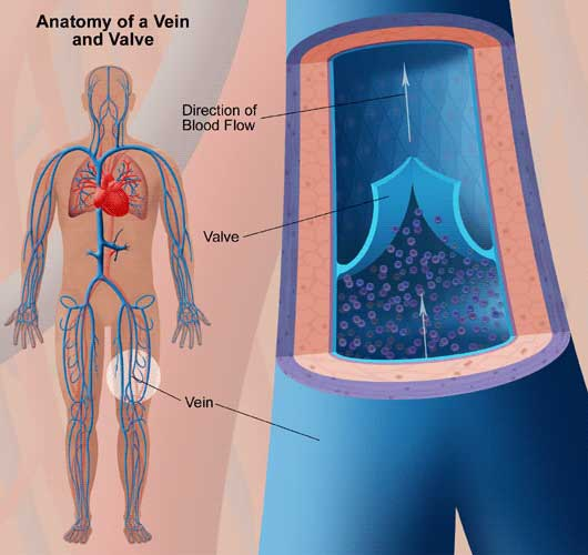 Chronic venous insufficiency (CVI)