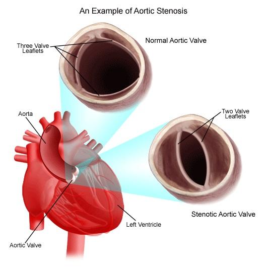 congenitalheartdisease diagram heartaorticstenosis