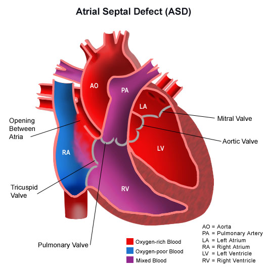 Septal Congenital Heart Defects | Stanford Health Care