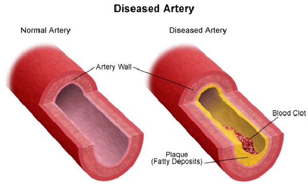 Atherosclerosis - Unknown Cause However a Treatable Condition