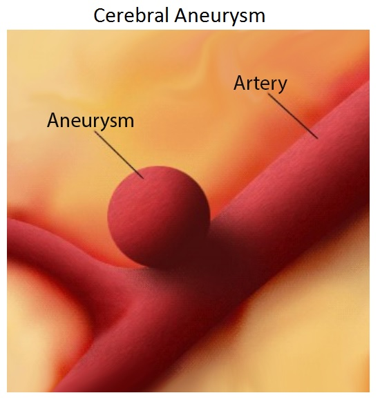 brain aneurysm | stanford health care, Human Body