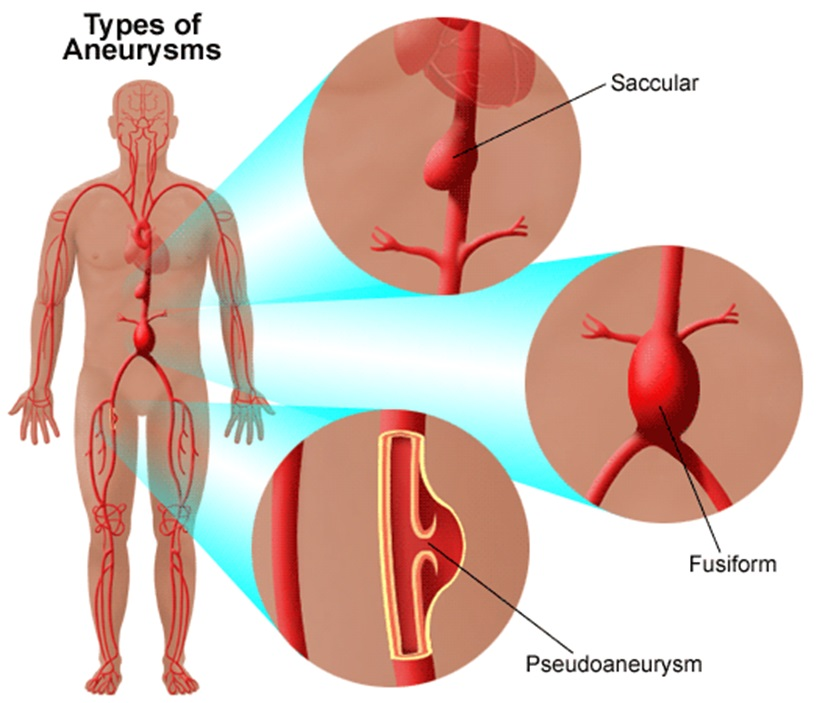 Types of Brain Aneurysms