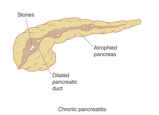 Chronic pancreatitis is