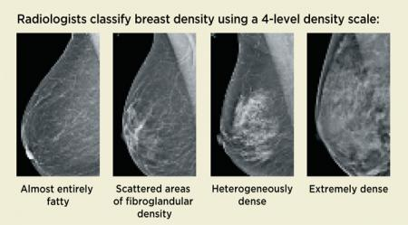 Many Women with Dense Breasts May Not Need Additional