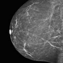 Stanford Health Care Offers Tomosynthesis Screening for Breast Cancer Diagnosis - KGOTV
