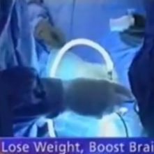 Gastric Bypass Improves Brain Power 10/08