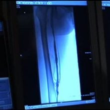 Stanford Interventional Radiology: A Definitive Treatment for Deep Venous Thrombosis