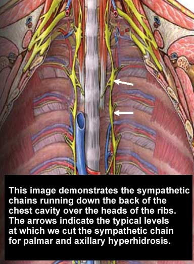 diagram of sympathetic chains in the chest cavity