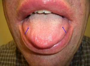 Amyloid deposits in the lip and tongue