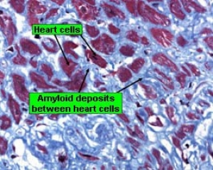 AL primary amyloidosis in a heart