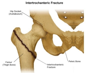 Types Of Hip Fractures Stanford Health Care