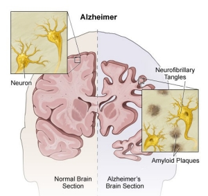 An image of a brain affected by Alzheimer's disease.