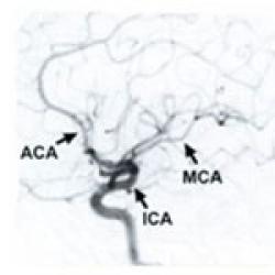 Cerebral Angiogram to Diagnose Moyamoya | Stanford Health Care