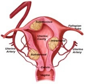 Women's reproductive system with different types of fibroids