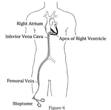 Cardiac Biopsy/Monitoring | Stanford Health Care