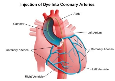 Types Of Cardiac Catheterization Stanford Health Care