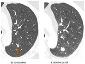 lung cancer ct scan