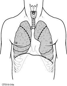 diagram of typical areas of lung removed during LVRS