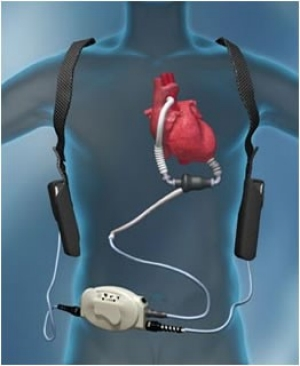 Image result for Left Ventricular Assist Device Treatment