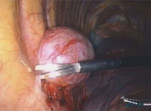 Intraoperative view of a benign intercostal nerve associated schwannoma