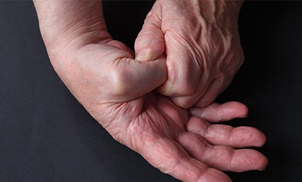 Outpatient Suture Button Suspensionplasty (SBS) Procedure for Thumb Arthritis Shortens Recovery Time