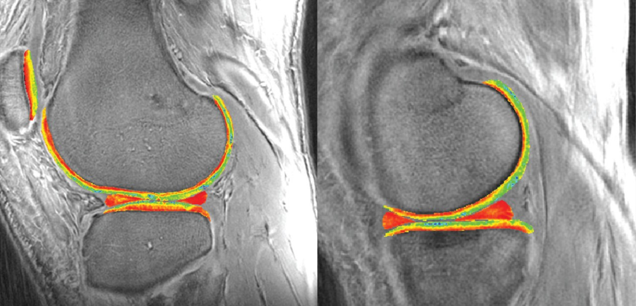 Preventing Osteoarthritis With Immediate Treatment of ACL Injuries