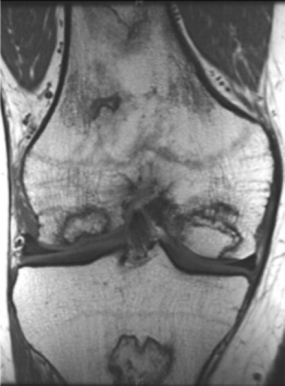 MRI scan showing osteonecrosis of the knee.