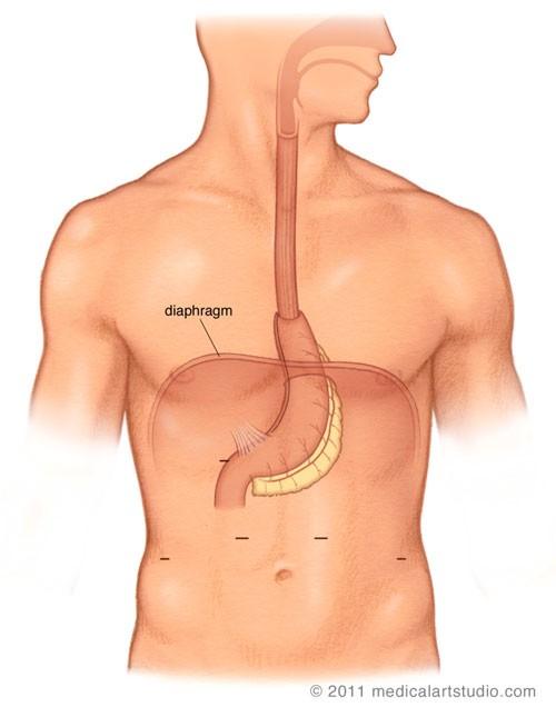 Completed minimally invasive Ivor Lewis Esophagectomy