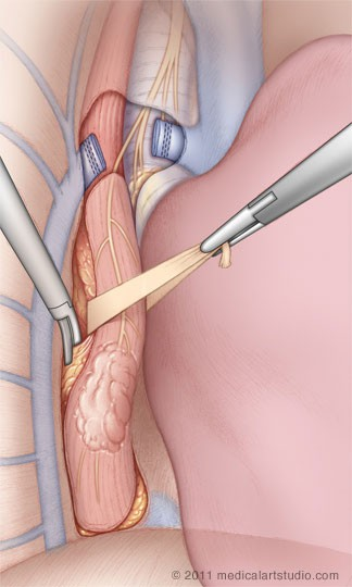 Thoracoscopic (VATS) mobilization of the esophagus