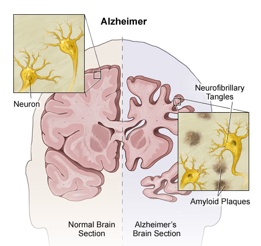 dementia vs alzheimer's disease Basics of alzheimer's disease and dementia alzheimer's disease is an irreversible, progressive brain disorder that slowly destroys memory and thinking skills and, eventually, the ability to.